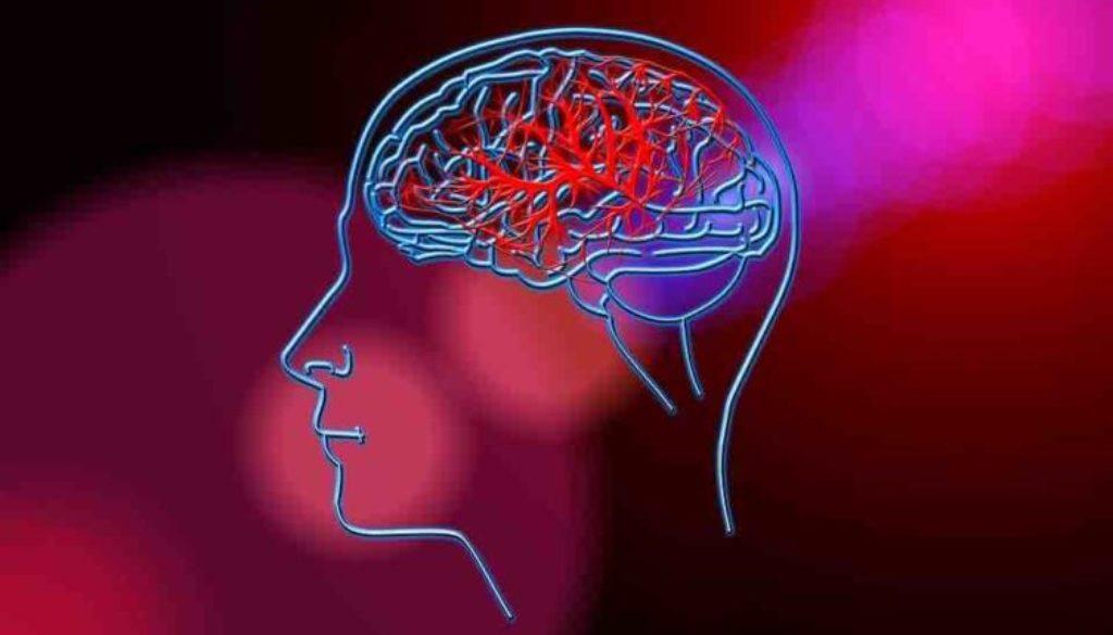 stroke-brain-753x500